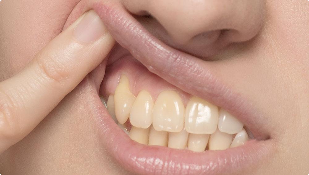 に 白い もの 歯茎 でき