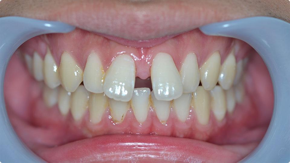 歯 乳歯 すき っ 乳歯 すき